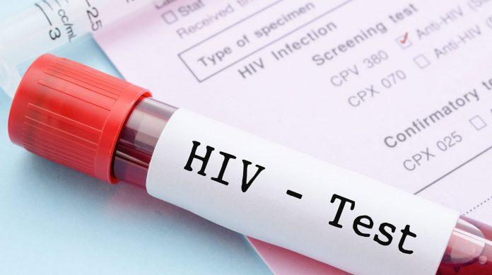 HIV London